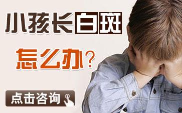 青岛白癜风的症状表现有什么